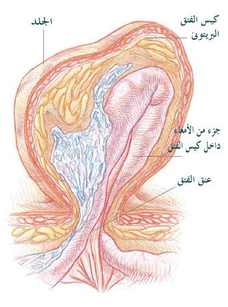 ����� ����� ����� � ������� ����� � ����� ������ herniasac.jpg